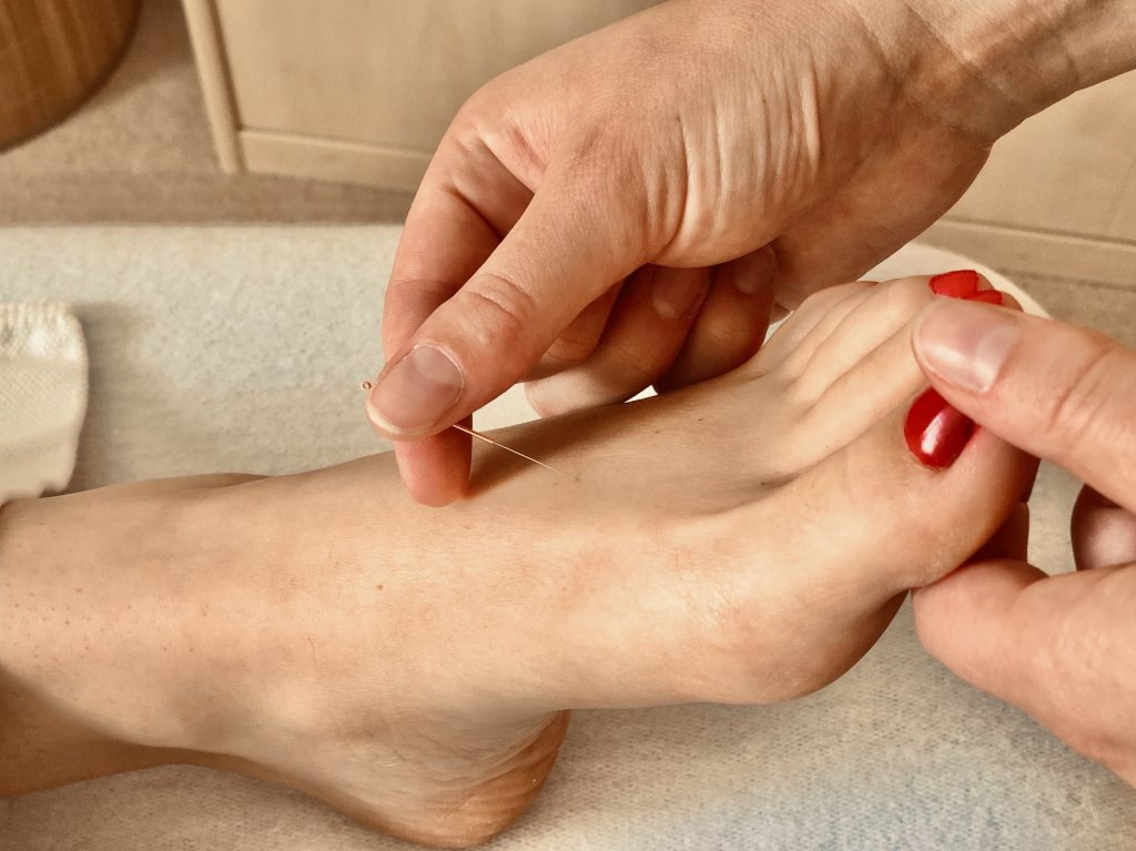 Acupunctuur naald in voet in acupunctuur praktijk AcuVitaal in Friesland