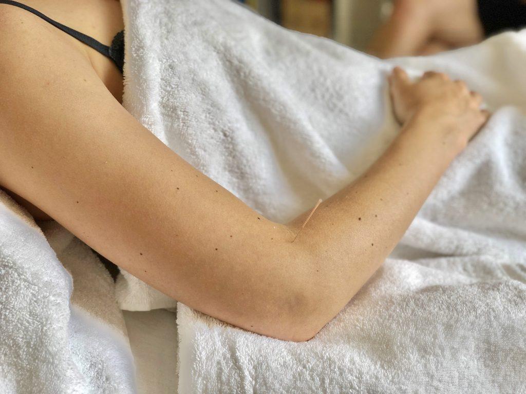 Liggen onder handdoek in acupunctuur praktijk AcuVitaal in Friesland